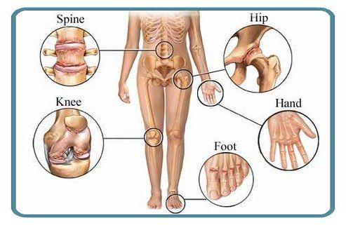 dureri la nivelul umerilor și genunchilor boli inflamatorii degenerative ale articulațiilor