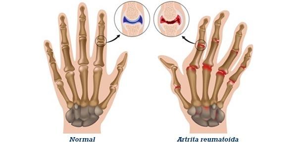 diagnosticul și tratamentul artritei articulare dureri articulare la genunchi după proteze