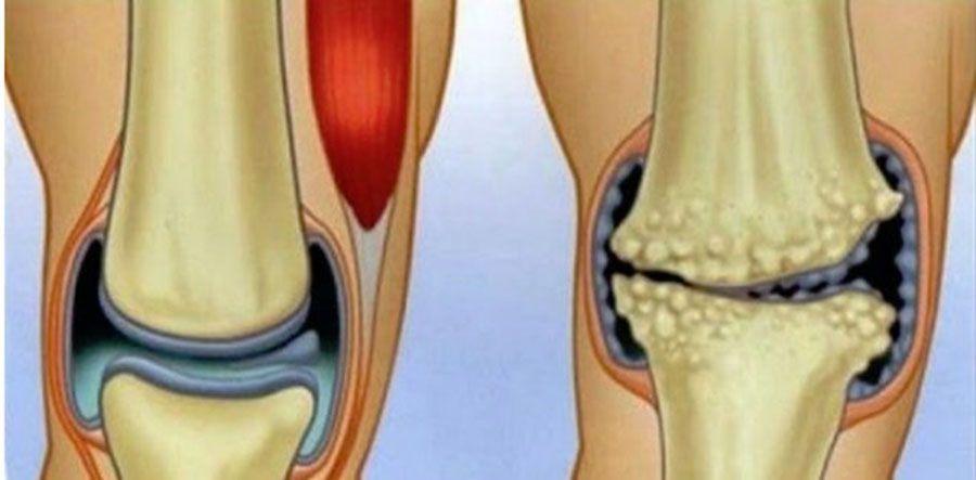Meniscus deplasarea tratamentului articulației genunchiului