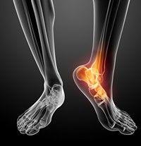 Tratament Lazăr artroza