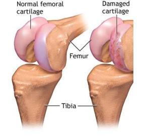 subțierea cartilajului hialin al tratamentului articulației genunchiului