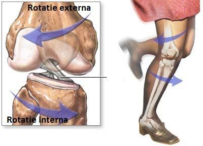 ruperea ligamentelor tratamentului articulației genunchiului stâng