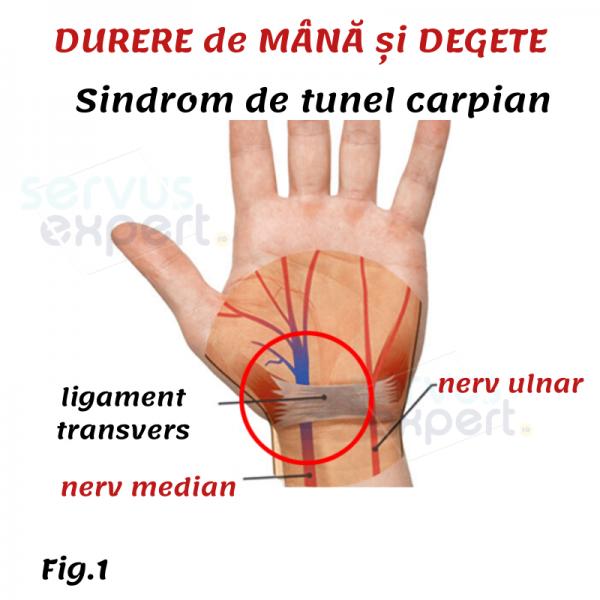 dureri la încheietură și deget
