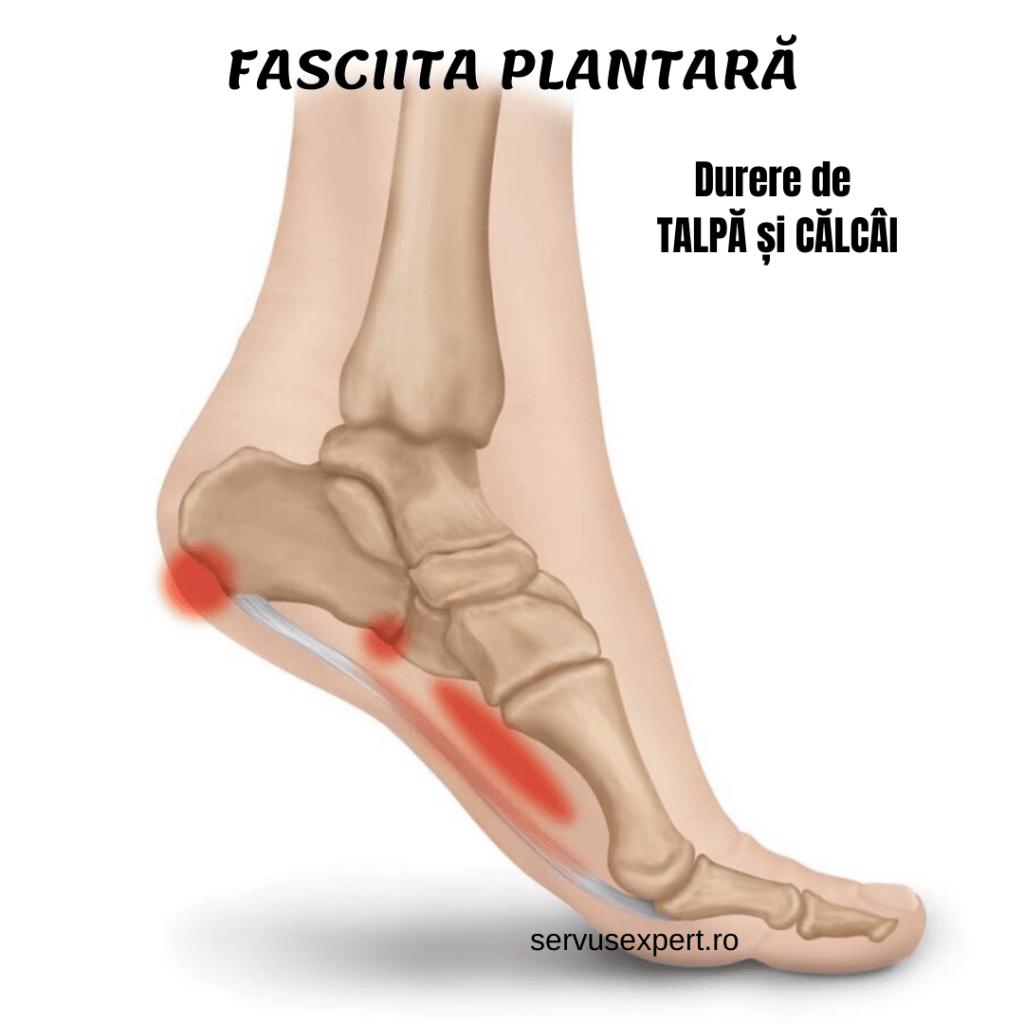 Inflamația unguentului articulației piciorului - avagardens.ro