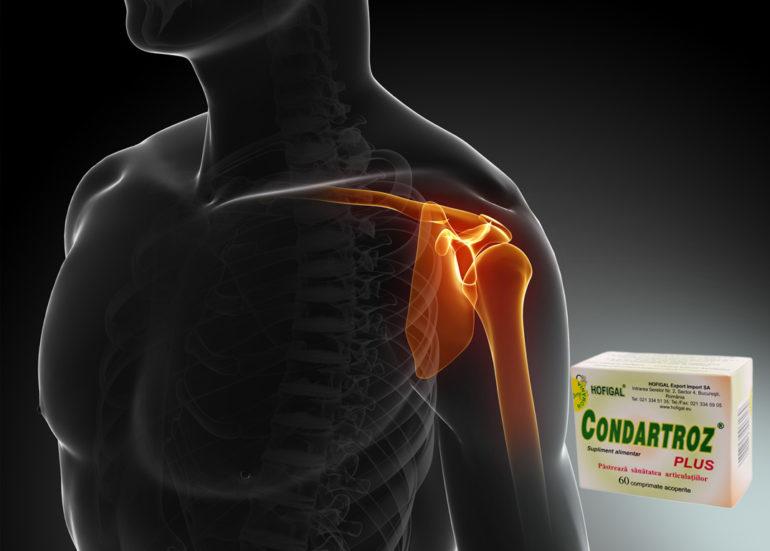 tratamentul artrozei articulației umărului și a medicamentelor