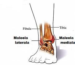 refacerea articulației gleznei după fractura piciorului ceea ce provoacă durere în articulația șoldului
