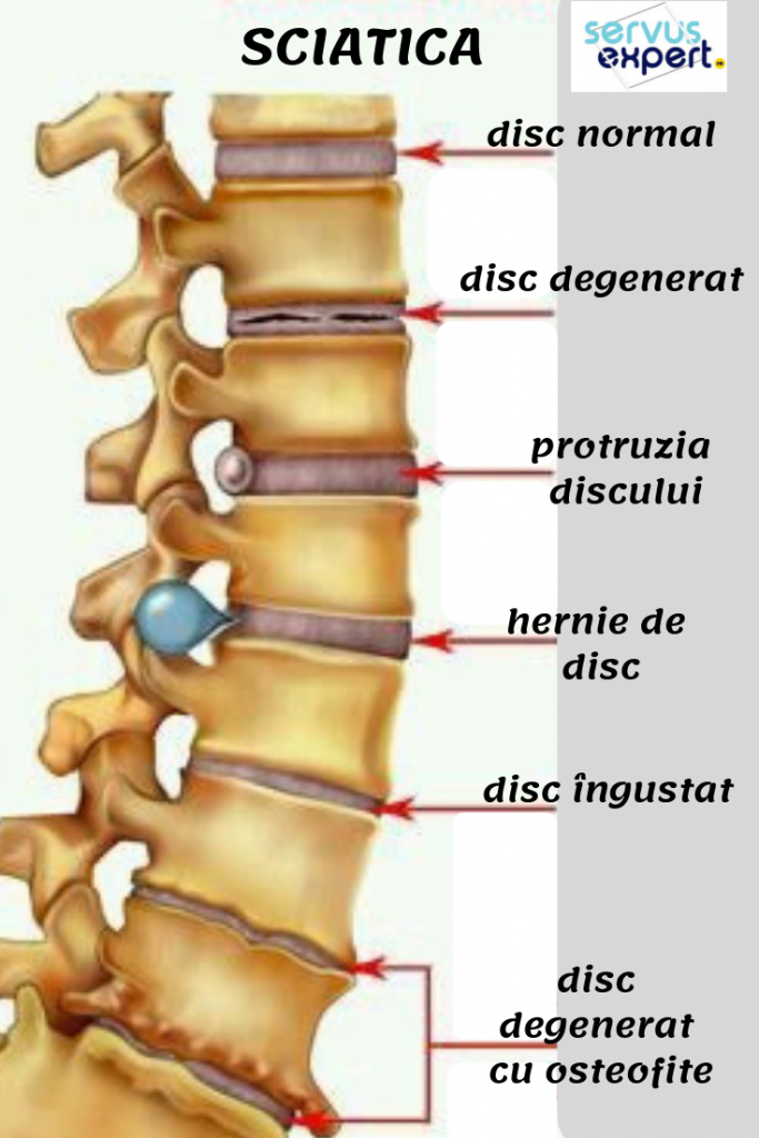 tratamentul articulațiilor claviculare