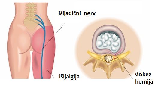 tratament post traumatic al articulațiilor umărului