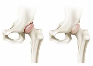problema cotului îngrijorat de dureri la genunchi