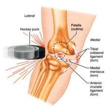cum să tratăm osteocondrita disecantă a genunchiului