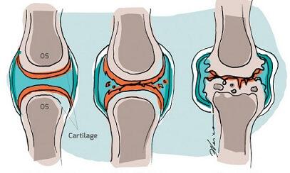 tratamentul cu artroza hemartroza tratamentului articulației genunchiului și consecințe