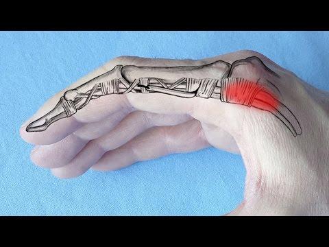 durere la nivelul piciorului articulației șoldului