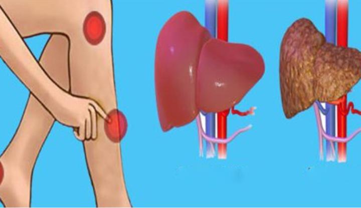 Dureri musculare oboseală creștere în greutate. Oboseala musculară - semne și simptome