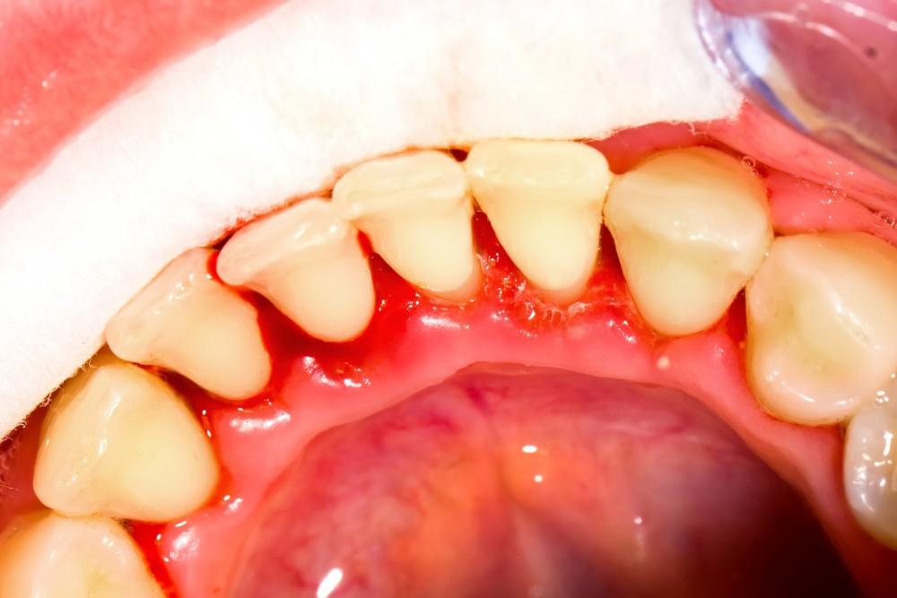 Sângerarea gingiilor dureri la nivelul articulațiilor. Afecțiuni ale gingiei
