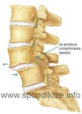 Osteofitele
