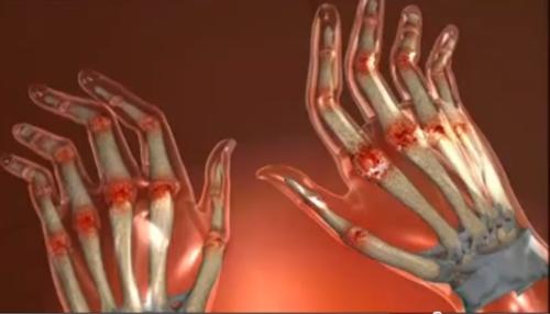 dureri articulare și roșii