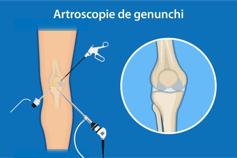 infectie in zona genunchiului