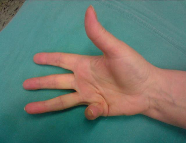 țesut conjunctiv dens al pielii degetului unei persoane ce unguent pentru ameliorarea durerii în articulația genunchiului