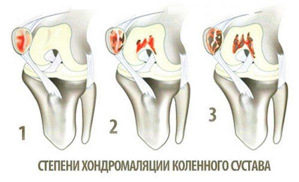unguent pentru artrita articulațiilor piciorului