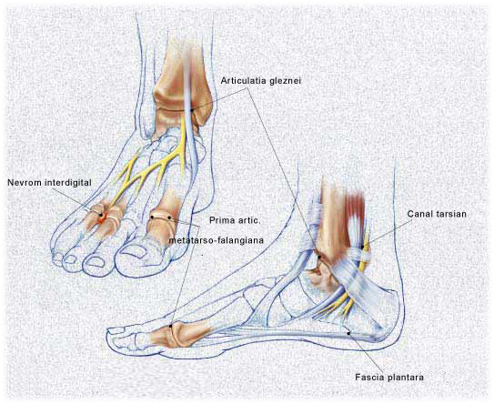 anestezie pentru artroza articulației gleznei