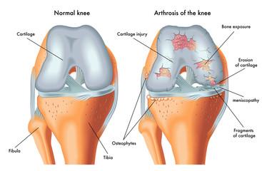artroza articulară poate fi încălzită