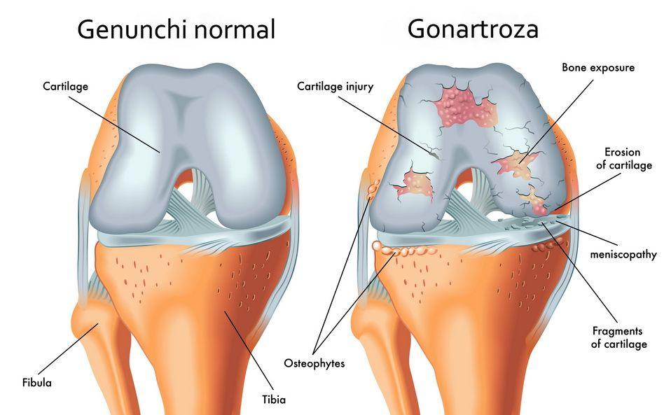 Artroza deplasată a genunchiului