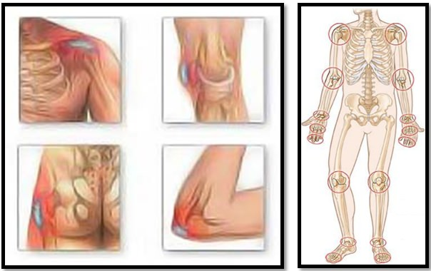 cum să învingi artroza articulațiilor