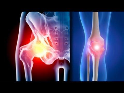 tratează artroza genunchiului