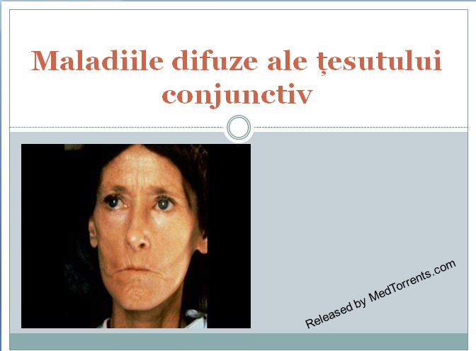 boala sistemică a țesutului conjunctiv SLE