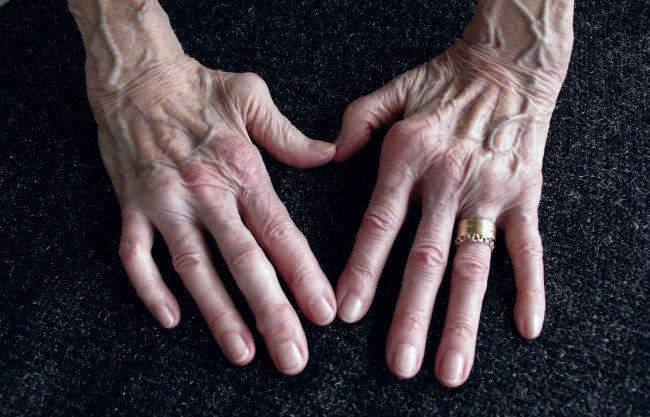 bolile artritei și modul de tratare