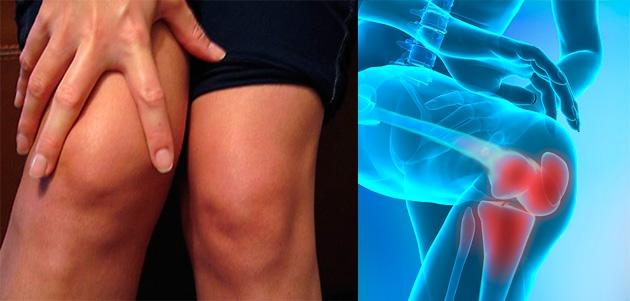 ce plante tratează artroza unguent absorbabil pentru articulația genunchiului
