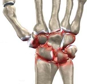 ce poate răni articulația încheieturii? durerea radiază până la articulația umărului
