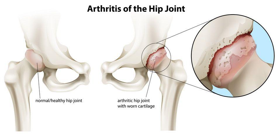În durere severă la nivelul șoldului și piciorului drept Abordarea cea