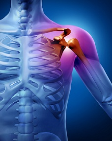Sindromul articulațiilor umflate - ce să faceți, cum să tratați? - Cifoză -