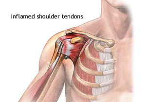 durere arzătoare în articulații într-un vis dureri articulare în extremitățile inferioare