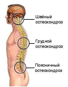 medicamente în tratamentul osteocondrozei coloanei vertebrale