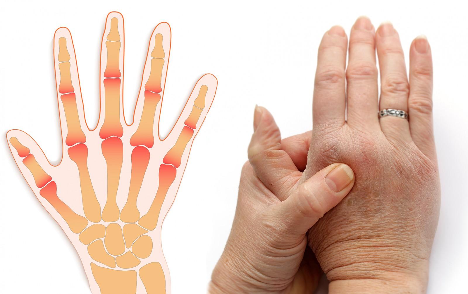 боль в суставах пальца должно быть сделано
