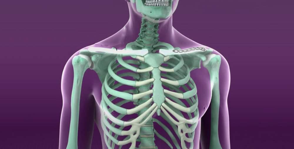 diprospan intramuscular pentru dureri articulare