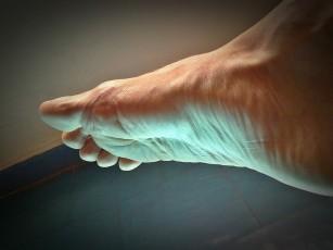 durere acută în articulațiile degetelor de la picioare ajutați cu artrita degetelor