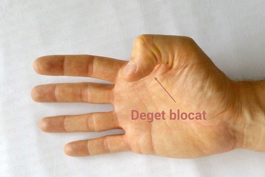Artroza mainilor: de ce apare si cum se trateaza: Навигация по записям