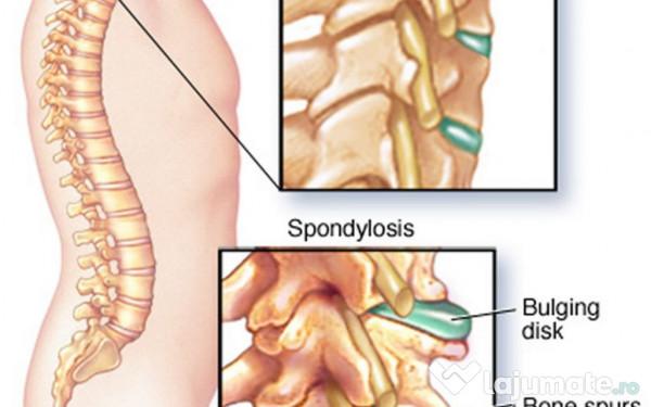 tratament eficient pentru articulații artroza deformantă a gradului 1 al articulației genunchiului