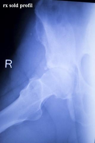 artroza tratamentului articulațiilor umărului și cotului