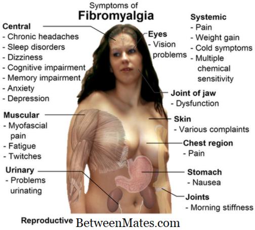 fibromialgie și dureri articulare