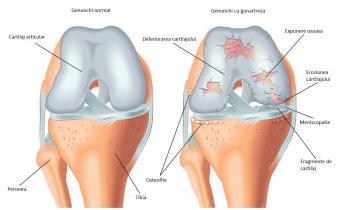 frecvența durerii la genunchi