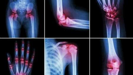 inflamație și dureri articulare