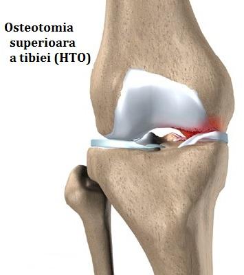 Genunchi dureri de un singur picior squat, dureri in ovare