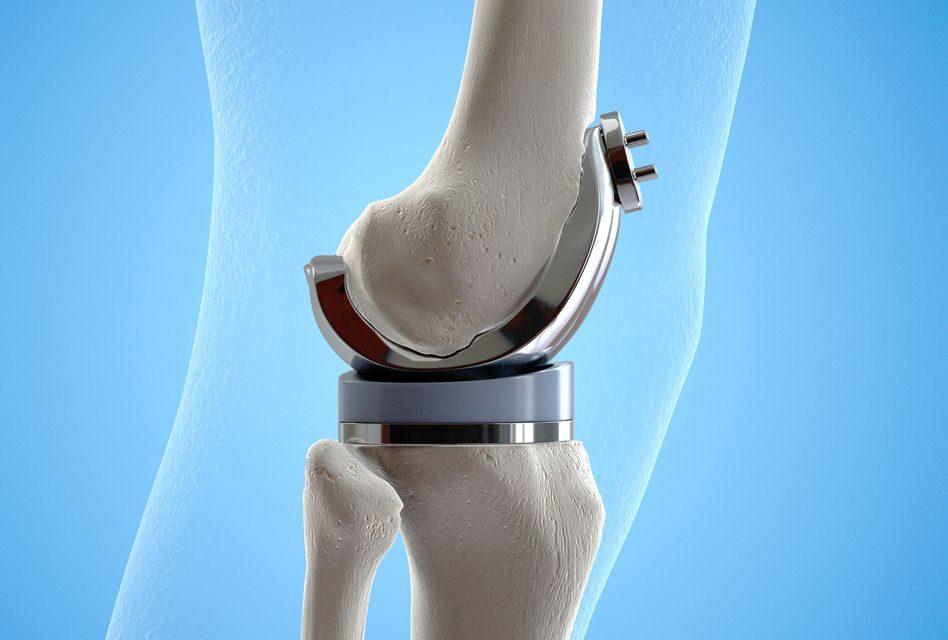 Produse pentru repararea genunchiului