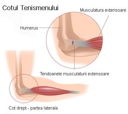 cauzele durerii în mușchi și articulații