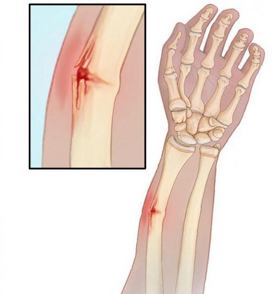 articulațiile purtate rănite tratamentul capsulelor articulare