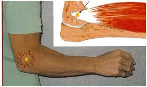 Cum se tratează epicondilita articulației cotului